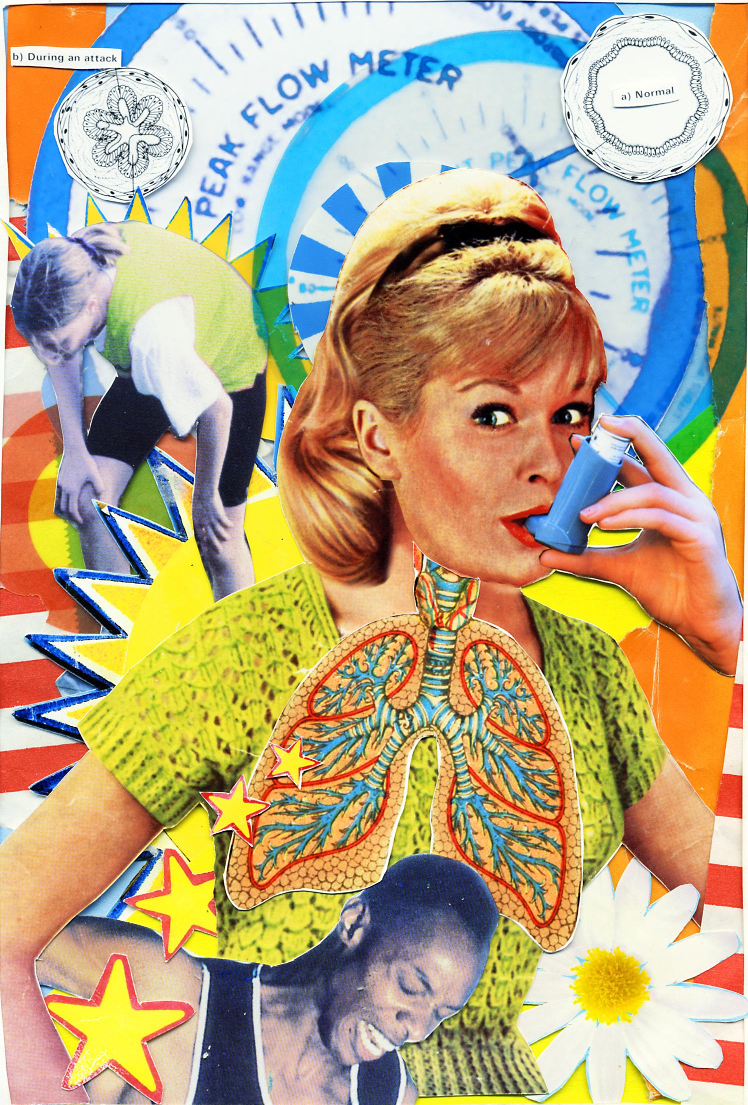 Asthma Treatment Medicine
