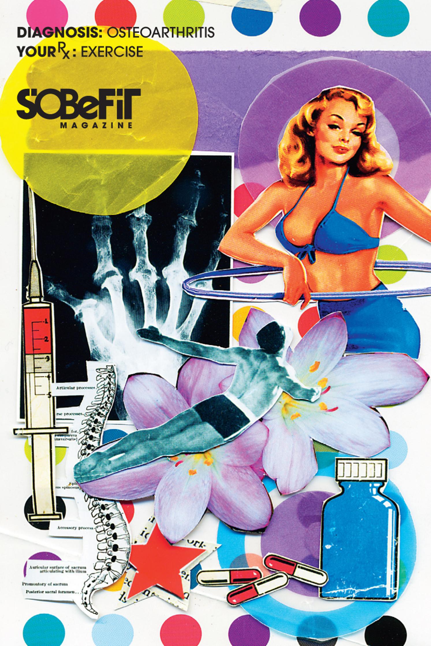 SoBeFit Osteoarthritis
