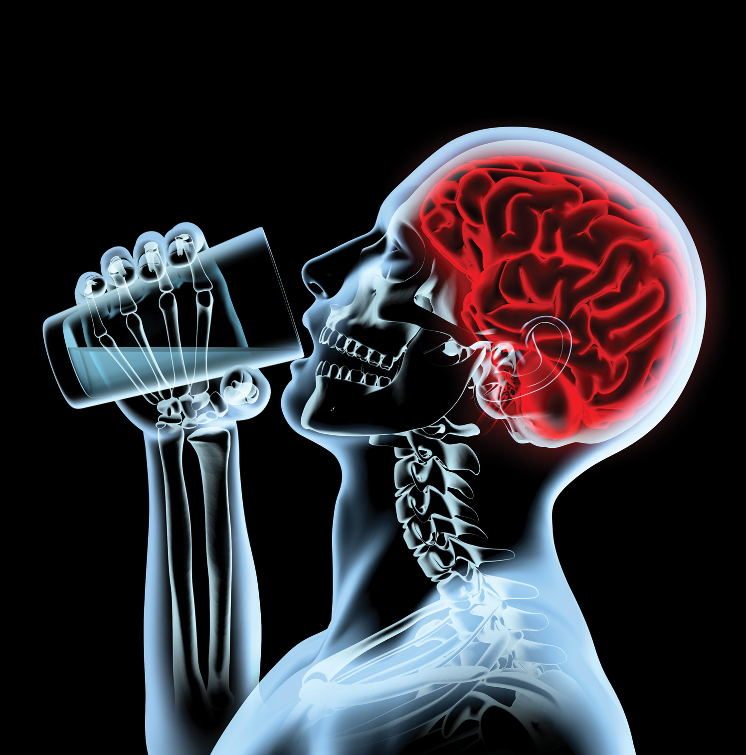 X - ray brain
