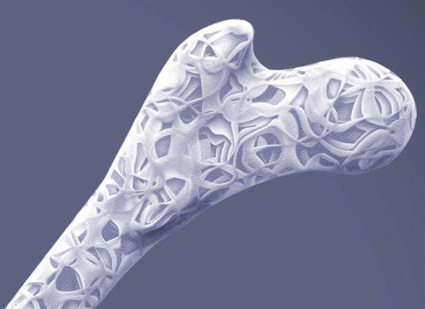 Fractal Femur Fracture.jpg