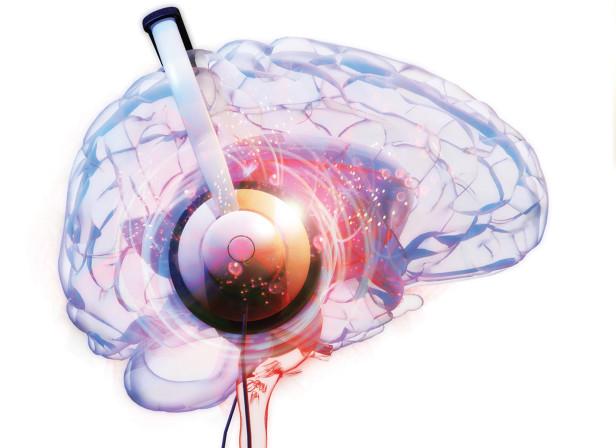 Music Brain / BBC Focus Magazine